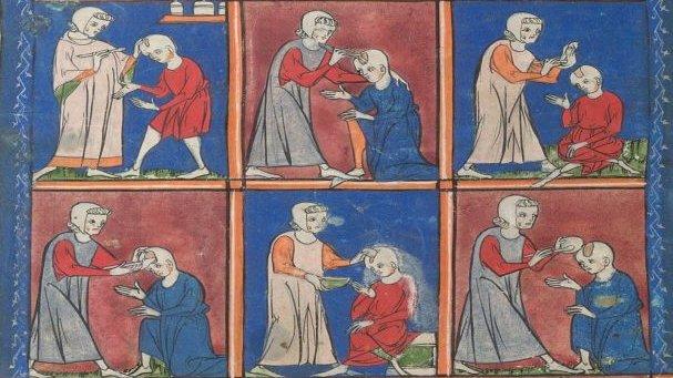 Det har taget lang tid at udvikle de metoder, som lægerne bruger i dag. Tegningerne her er fra starten af 1300-tallet og viser forskellige måder at fikse et hul i kraniet på.